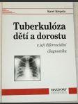 Tuberkulóza dětí a dorostu a její diferenciální diagnostika - náhled